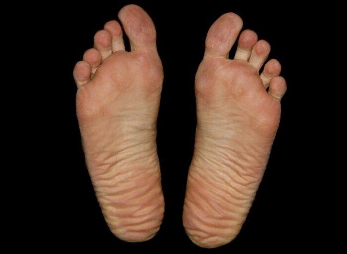 Why do kettlebell swings hurt my feet?